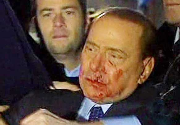 berlusconi_aggressione10