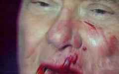 Silvio Berlusconi ferito